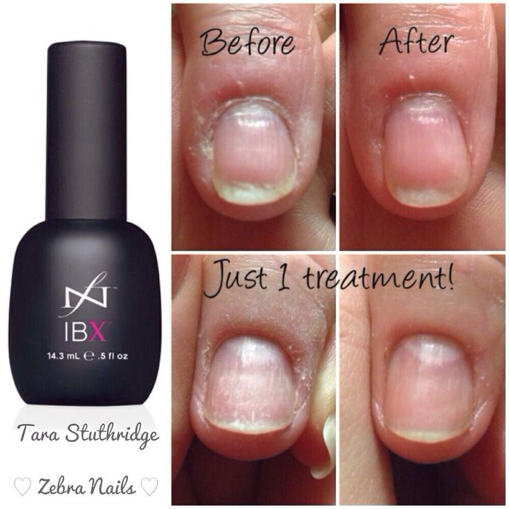 Before and after IBX nail treatment