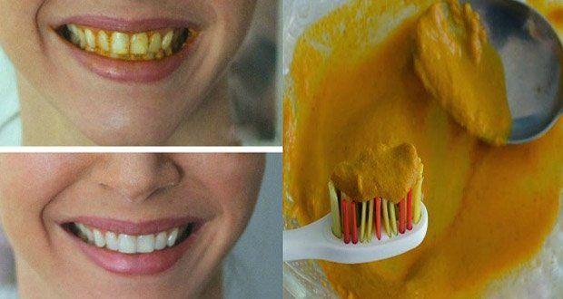 Voici une recette naturelle à base de curcuma très efficace pour retrouver la blancheur de vos dents et un sourire éclatant !
