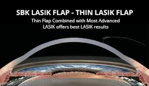 At our LASIK Centers, we pride ourselves in the personal attention we are able to provide to all our patients.Before you make a decision concerning laser vision correction and LASIK