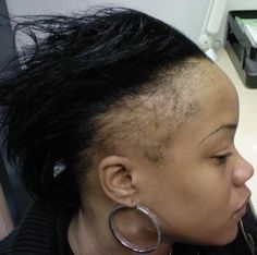 Regrowing Thin Edges And Bald Spots Caused By Alopecia With Essential Oils - http://www.blackhairinformation.com/growth/hair-problems/regrowing-thin-edges-and-bald-spots-caused-by-alopecia-with-essential-oils/