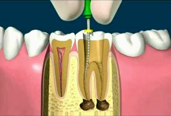 marlon becerra, marlon becerra suba, odontologia bogota, odontologia marlon becerra, rehabilitación oral, ortodoncia, odontologia especializada