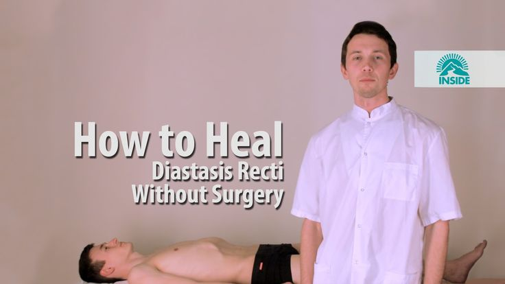 Диастаз прямых мышц живота, как убрать безоперационно . How to Heal Dias...
