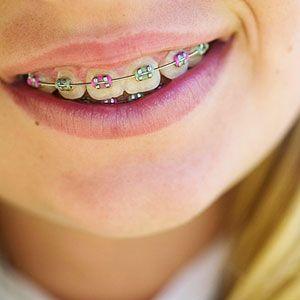 Brace Yourself: The Facts About Dental Braces for Kids (via Parents.com)
