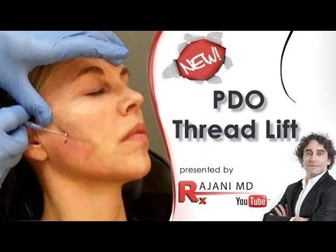 PDO Thread Lift Facelift-Dr Rajani