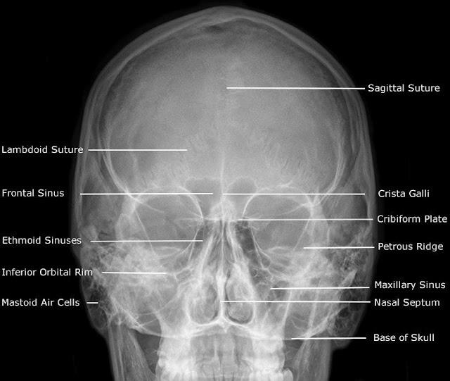 Anatomy on extraoral radiographs.