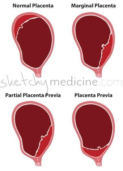Placenta previa grade-iv - SlideShare