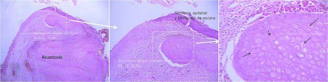 Viruela aviar.  Imagen tomada de muestras procesadas de  una de las aves que se presentan en la imagen No. 2. Corte de párpado: imágenes en secuencia. Izquierda:  párpado (Hematoxilina-Eosina 4X) en el cual se observa a la izquierda el epitelio cutáneo, el cual muestra a su vez en las partes superior y derecha, necrosis superficial con formación de escara; se observa  hiperplasia (Acantosis) del estrato espinoso. Derecha: las flechas señalan cuerpos intracitoplasmáticos de inclusión…