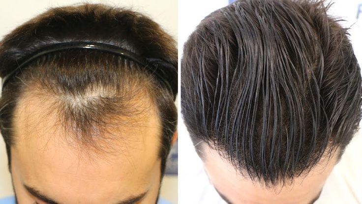 Injerto Capilar Fue 1778 Injertos Alopecia Nw Ii A Dr Couto Fuexpert Clinic Madrid Espana Objetivos Hair Transplant Fue Hair Transplant Hair Surgery