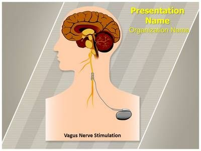 vagal nerve stimulation weight loss