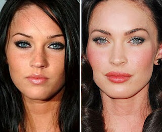 Megan Fox nose job lip implants cheek injections brow lift