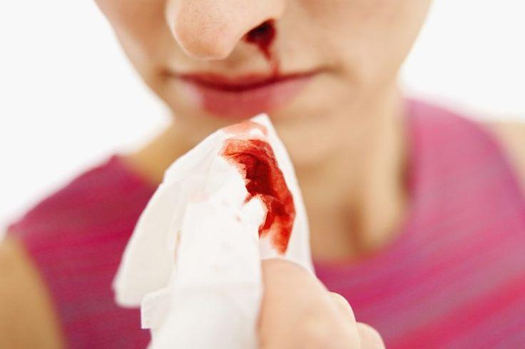 ¿El alto consumo de sodio causa sangrado nasal?. Si te sangra la nariz después de consumir una comida alta en sodio, es posible que desees pensar en cambiar tu dieta. Si bien el sangrado de nariz es a menudo causado por el aire seco, alergias, resfriados y sonarse la nariz fuerte, también es ...