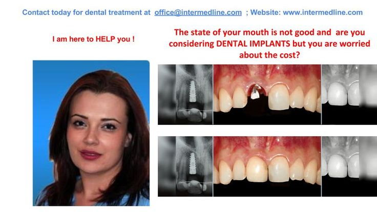 Implant dental surgery in our Romanian dental clinics , your best solution for dental surgery abroad. To see cost of cosmetic dental surgery visit website and contact today for your dental treatment at office@intermedli...; phone: +40 311.073.167/ +40 730.482.672; website:http://www.intermedline.com/dental-clinics-romania/ #dentaltourism #dentaltourisminRomania #dentist #dentistinRomania #dentalclinic #dentalclinicinRomania #dental #dentalinRomania #dentaltravel #dentaltravelinRomania