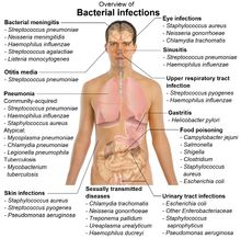 bacterialHealth Info, Nature Cure, Essential Oil, Nature Home Remedies, Medical, Nature Treatments, The Body, Bacterial Infection, Nurs Stuff