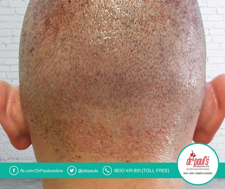 #HairTransplantFacts  #Myth:  Many people think that the larger the number of hair grafts transplanted in a particular session, the better will be the result.  #Fact: Although, transplanting large number of hair grafts in one session minimizes the donor scars and gives a natural look, yet it increases the risk of sub-optimal growth of the hair and sometimes compel the surgeons to implant the hair into areas that are not ideal.