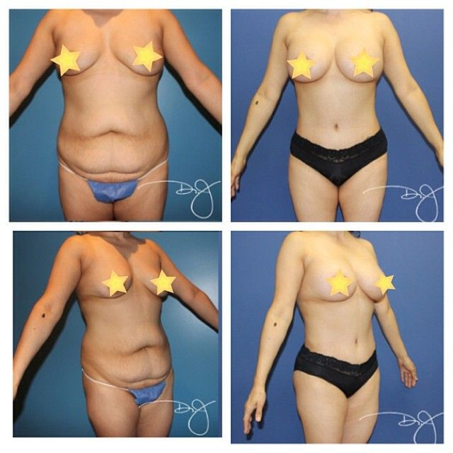 Liposuction of the breast