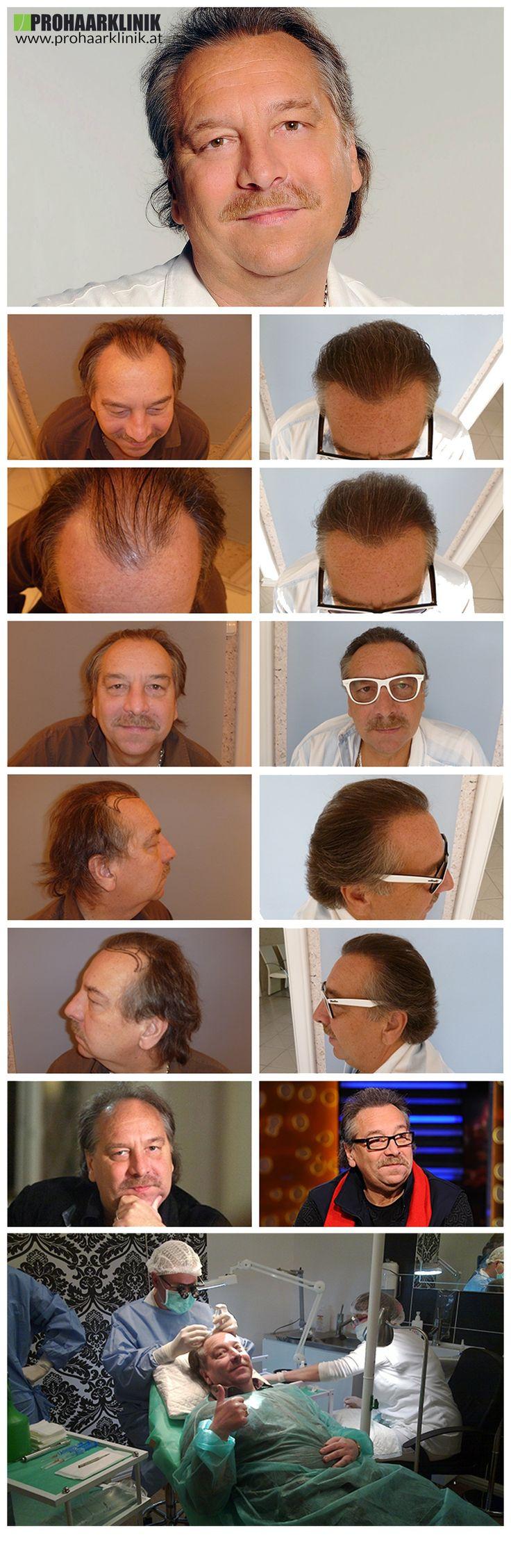 http://www.prohaarklinik.at/haartransplantation-vorher-nachher-bilder/  Haar Implantation Beratung - PROHAARKLINIK  Dieses Bild zeigt die Ergebnisse der 4000+ Haartransplantationen, zwischen langen Haaren, innerhalb von 1 Tag -. Bei PROHAARKLINIK. Die nach Fotos wurden 1 Jahr nach der Implantation entnommen.