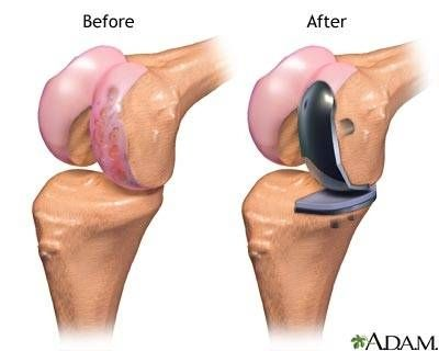 Partial Knee Replacement Surgery