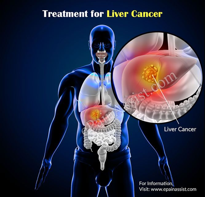 Treatment for Liver Cancer or Hepatic Cancer