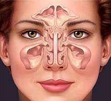 La sinusite est une inflammation d'un ou de plusieurs des des quatre paires de cavités muqueuses, appelées sinus (maxillaire, frontal, sphé...