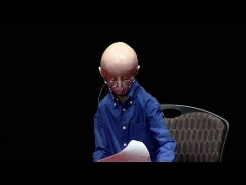 Last year, Sam gave a moving TED talk on his philosophy for a happy life. | Sam Berns, The Brave Teenager Who Was The Face Of Progeria — And The Patriots' Honorary Captain — Has Died