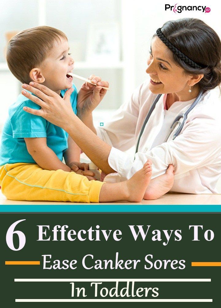 Canker Sores In Toddlers