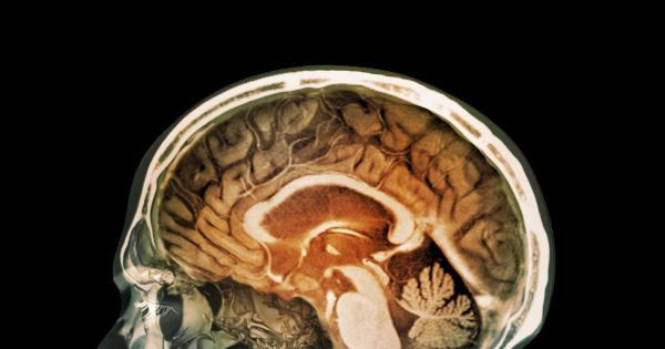 273 Best Images About Neuroplasticity On Pinterest