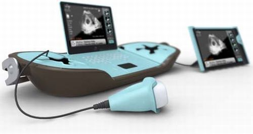Stork: Portable ultrasound machine boon for expectant mothers