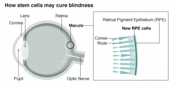 Exitosa operación podría ser la cura para la ceguera macular