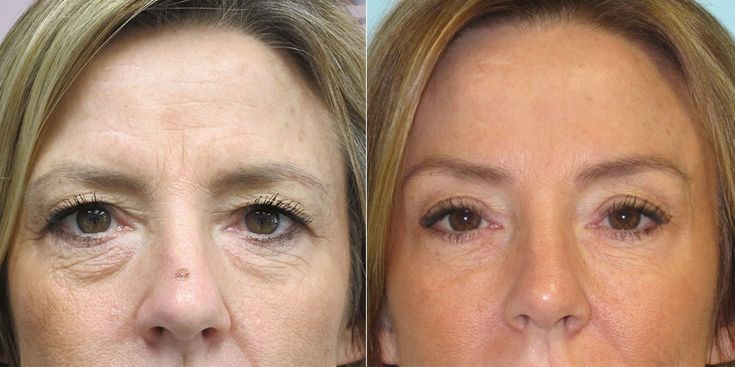 Browlift and Forehead Lift