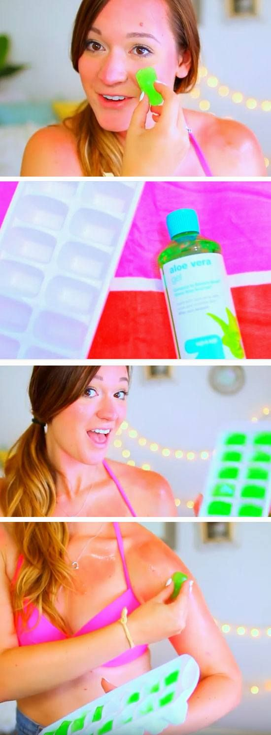 Make Aloe Vera Cubes for Sunburn | 22 DIY Summer Life Hacks for Teens that everyone needs to know!