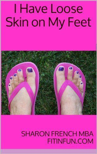 Anyone with sore tired feet can benefit from the tips on this eBook. You can read it on any device - you do not need a Kindle. It stays in your Amazon Cloud account forever.   I Have Loose Skin on My Feet by Sharon French $1.99 at Amazon