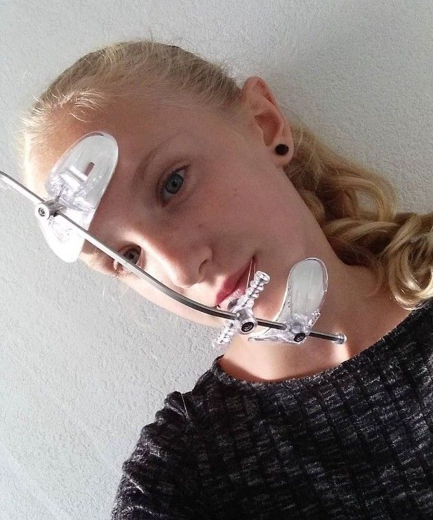 There are blowjob with orthodontic headgear