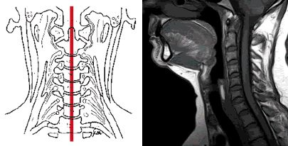 Cervicocranial syndrome and whiplash neck injury