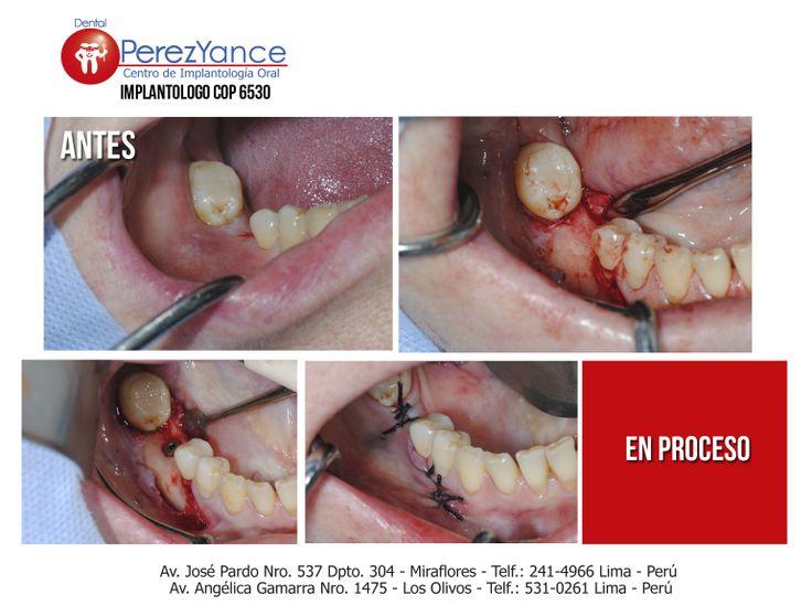 Las cirugías de implantes dentales dependen del tipo de implante y la condición de su hueso de la mandíbula. Pero las cirugías de implantes dentales se producen por etapas e involucran varios procedimientos.
