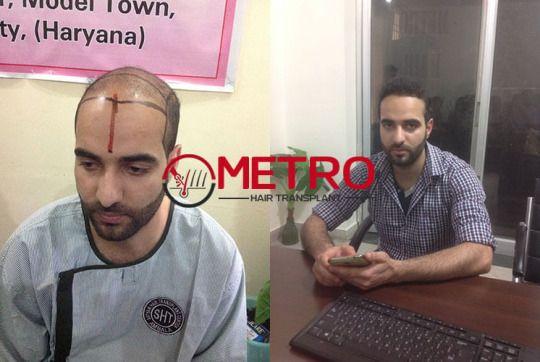 Benefits for hair transplant at metro hair transplant center