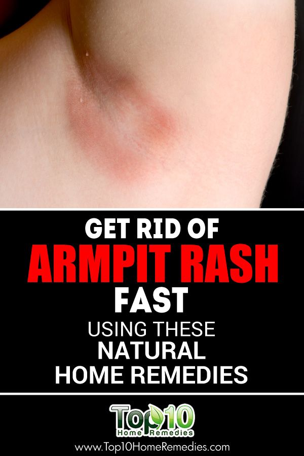 Get Rid of Armpit Rash Fast Using These Natural Home Remedies