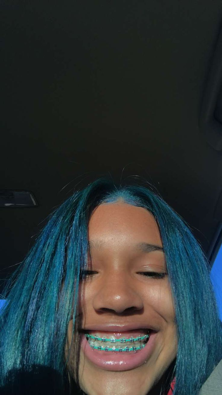 Crownmekween Random Tingz In 2019 Teeth Braces
