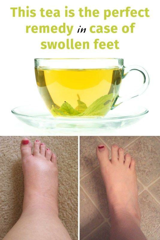 This tea is the perfect remedy in case of swollen feet ...