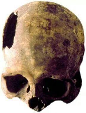 Cráneo Jose Raimundo Russi - Museo Nacional