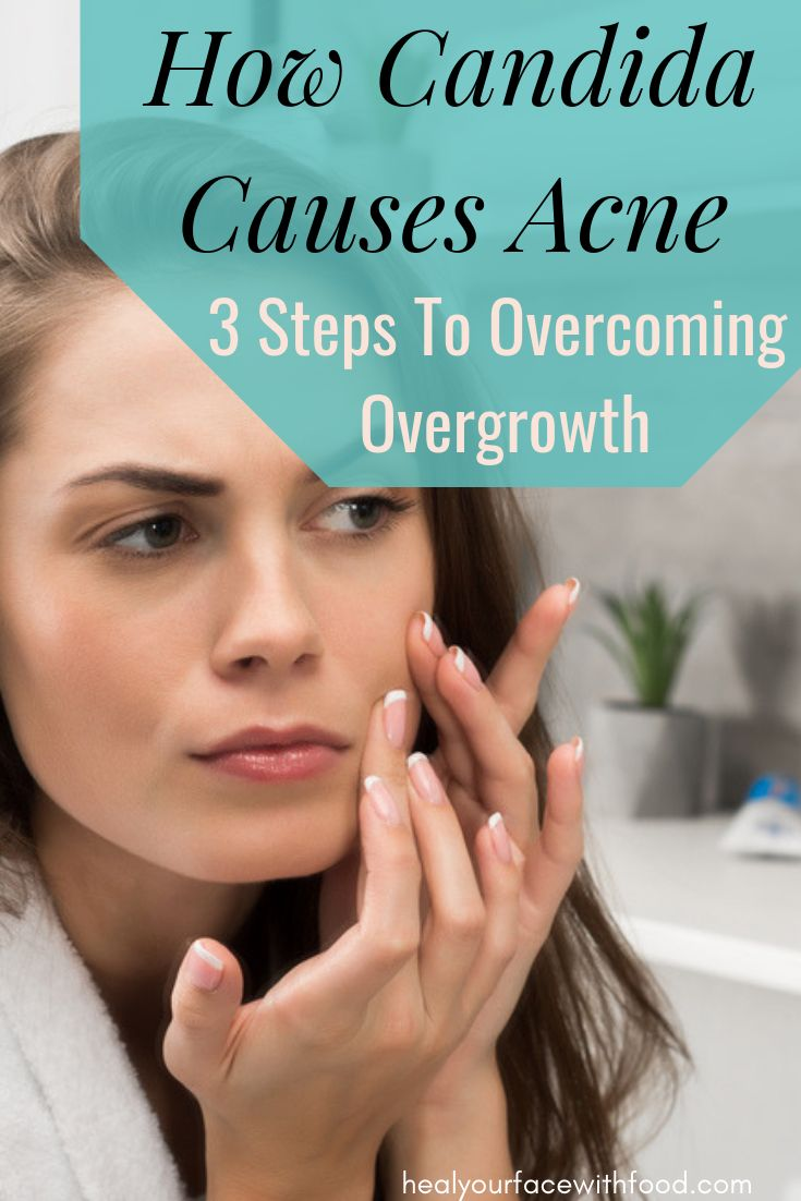 Candida and acne 4 reasons your acne might be caused by