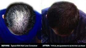 50% OFF Best Hair Loss Shampoo to Prevent and Cure Hair Loss in Men and Women. N