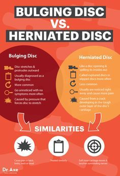 Natural Cures For Disc Disease