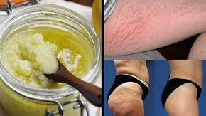 Very Effective Homemade Sugar-Salt Exfoliation Peeling to Completely Remove Stretch Marks and Cellulite – Go Fit Stay Fit