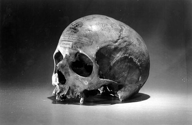 The skull of Alexander Pearce, Van Diemen's Land convict, cannibal and bushranger, which is held in the University of Pennsylvania, Philadelphia.