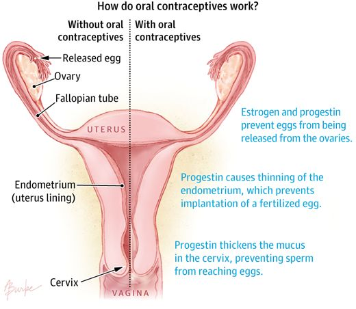 Best birth control options for endometriosis