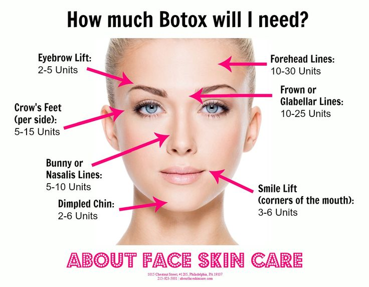 The Average Amount Of Botox Units Needed Per Facial Area