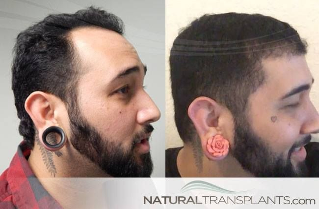 Hair Transplant Cost | After Hair Transplant Surgery