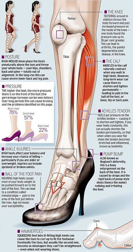 The reasons high heels are biomechanically terrible, in 1 nice infographic.