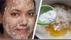 Las manchas oscuras en la piel y las manchas oscuras en el rostro pueden aparecer debido a diversos factores , como el embarazo, la exposición excesiva al sol, el envejecimiento y la herencia. A veces, se vuelven más oscuras y más grandes con el tiempo. Recientemente, se ha encontrado que esta mezcla puede eliminar eficazmente …