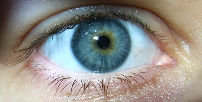 Central Heterochromia - Didn't know this subtle variance in iris color had a name. Now my eyes will have a proper description.